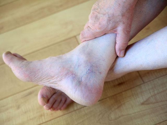 Suy giãn tĩnh mạch chân là gì ? Nguyên nhân, triệu chứng và cách điều trị hiệu quả
