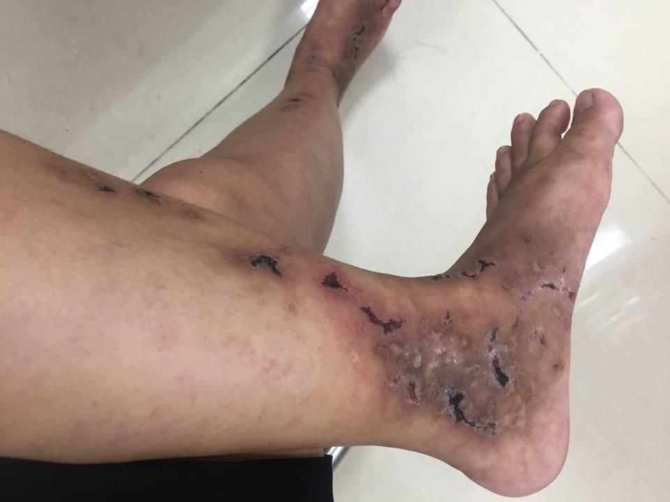 Bệnh nhân Phú (Hà Tĩnh) bị viêm mao mạch hoại tử