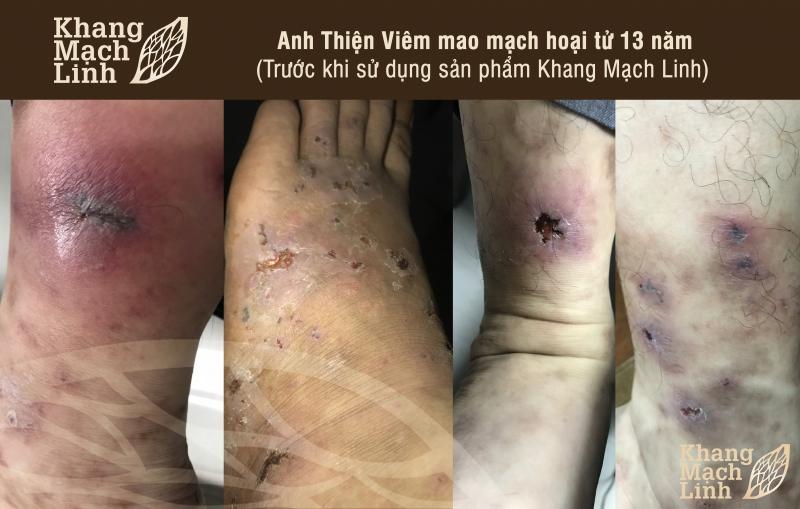kinh-nghiem-dieu-tri-viem-mao-mach-hoai-tu-3