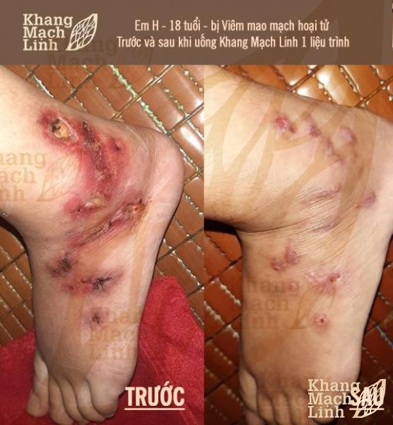 Chỉ 3 tháng mắc viêm mao mạch hoại tử chân mưng mủ lở loét