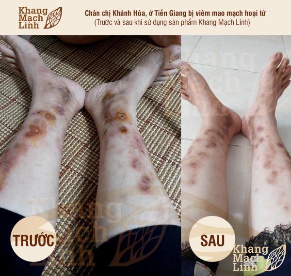 Bệnh viêm mạch máu Kawasaki:Tăng nguy cơ tổn thương nội tạng, nhiễm trùng hoại tử