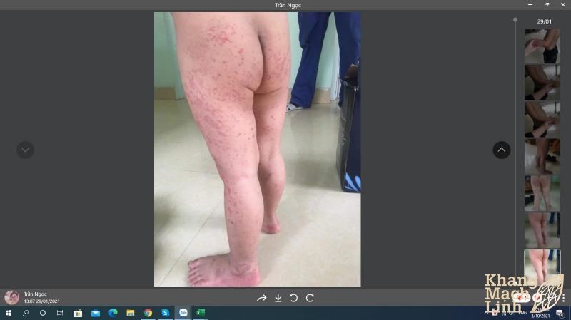 Bệnh viêm mạch máu Kawasaki