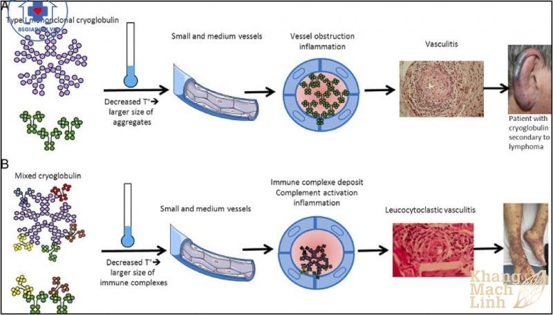 Bệnh Cryoglobulin máu