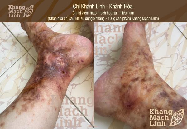 Đôi chân biến dạng, thâm tím vì viêm mao mạch hoại tử phải làm sao?