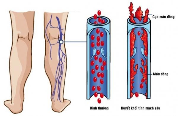 Bệnh huyết khối tĩnh mạch triệu chứng và cách điều trị