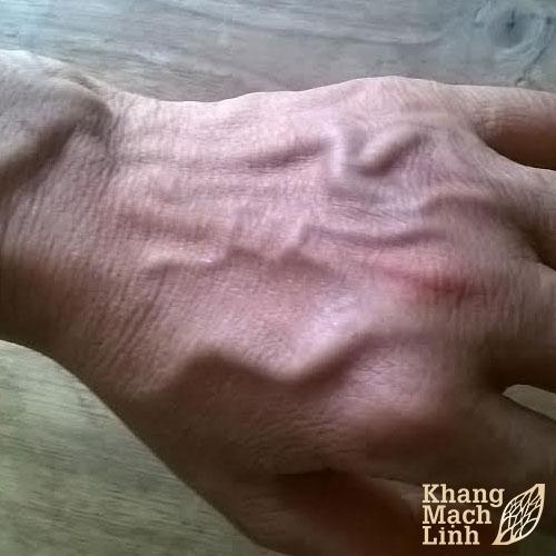Triệu chứng bệnh suy giãn tĩnh mạch tay và cách chữa trị hiệu quả