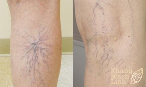 Các phương pháp điều trị suy giãn tĩnh mạch chân tốt nhất hiện nay