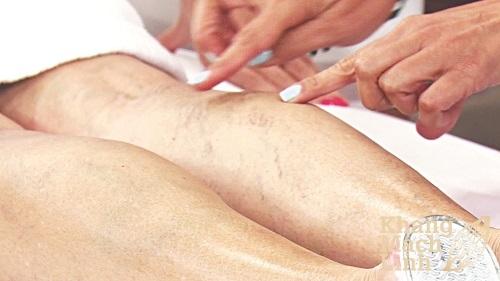 Phẫu thuật giãn tĩnh mạch liệu có hiệu quả như mong đợi?