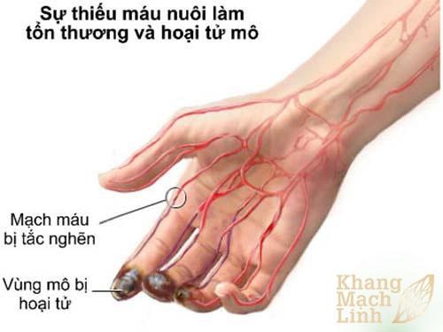 Viêm tắc tĩnh mạch tay và cách phòng bệnh hiệu quả