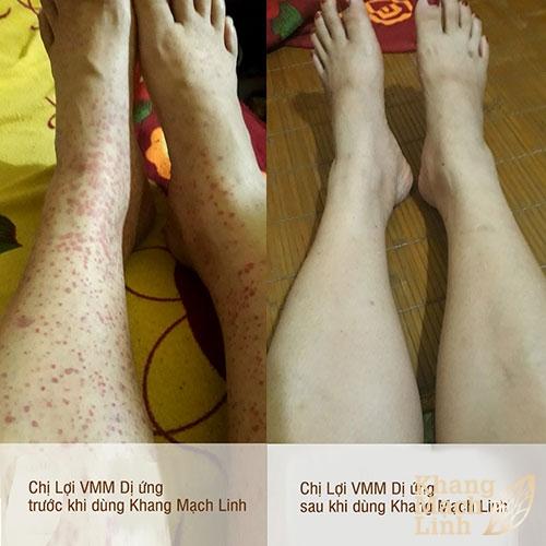Chị L ở Phú Thọ bị viêm mao mạch dị ứng 3 năm