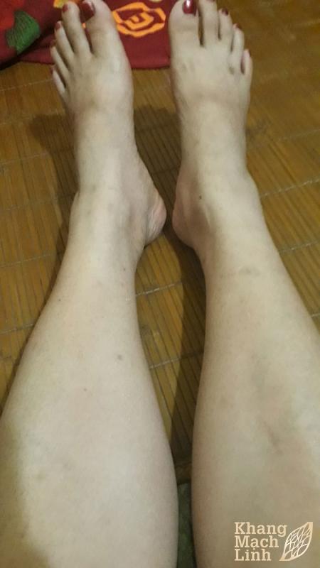 Viêm mao mạch dị ứng sau khi uống Khang Mạch Linh