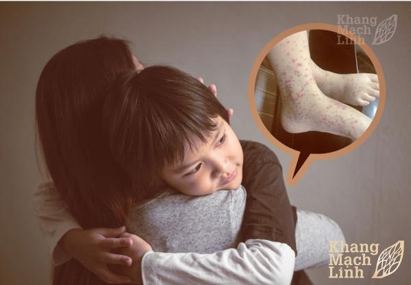 Trẻ em bị viêm mao mạch dùng Khang Mạch Linh liều như thế nào?