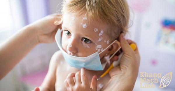 Liệu trình sử dụng Khang Mạch Linh cho trẻ em
