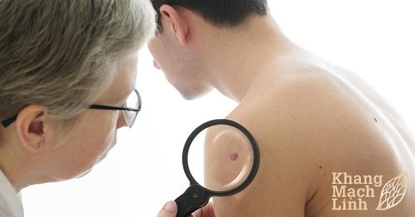 Viêm mao mạch dị ứng có gây ung thư da không? Giải đáp của chuyên gia
