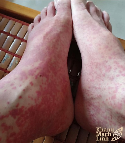 Mùa đông xuân là mùa bùng phát các bệnh có tính chất dị ứng