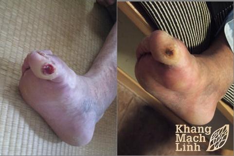 Ngăn chặn biến chứng cắt cụt chân ở bệnh nhân tiểu đường