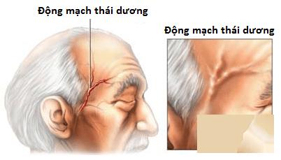benh-horton-viem-dong-mach-thai-duong-3