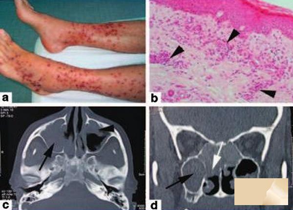 Điều trị hội chứng Churg – Strauss: Viêm mạch và đa u hạt dị ứng
