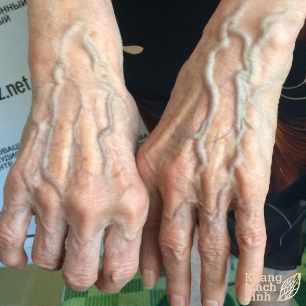 Mách bạn biện pháp điều trị giãn tĩnh mạch tay hiệu quả nhất hiện nay