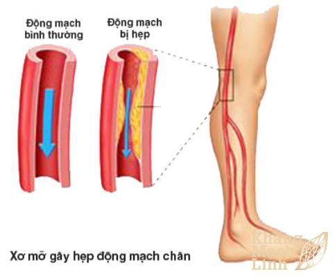 Bệnh động mạch ngoại biên chi dưới: Báo động lở loét, hoại tử, cắt cụt chi