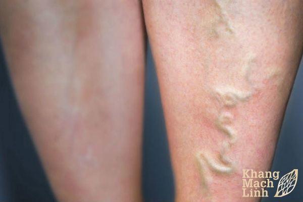 Bị nổi gân xanh ở chân là mắc bệnh gì?